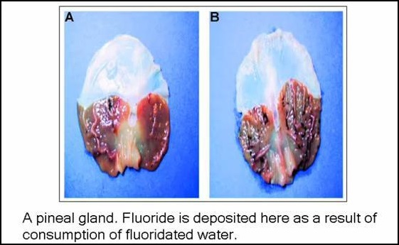 calcified-pineal-gland
